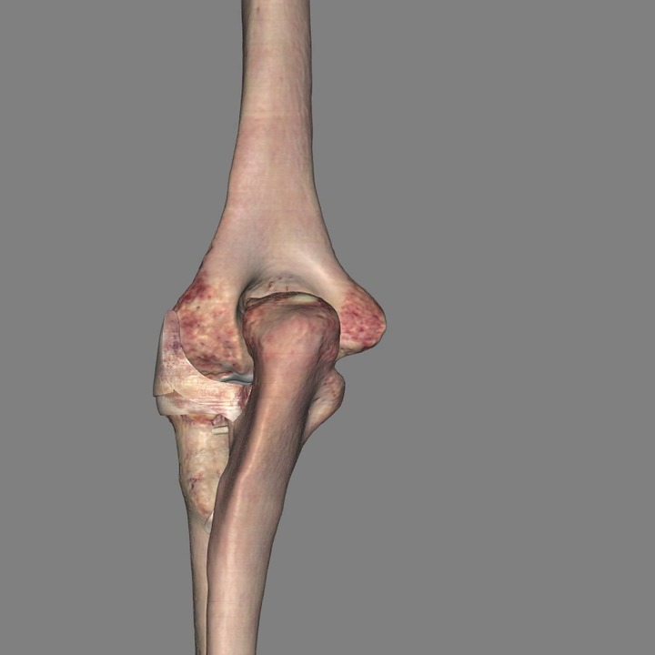 Ligaments of the Elbow