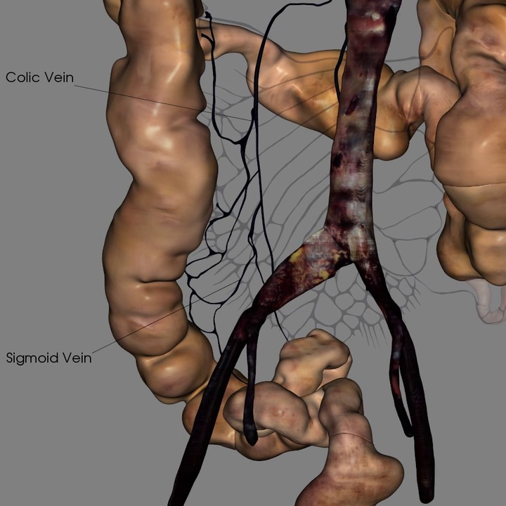 Inferior Mesenteric and Associated Veins